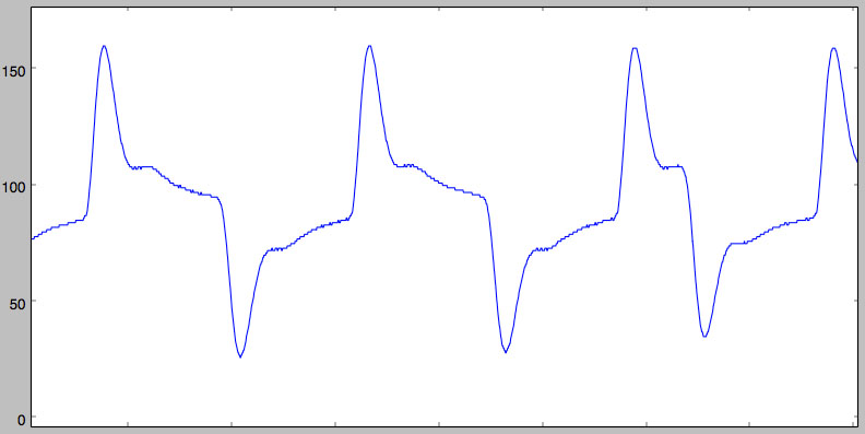 filtered signal 1MS